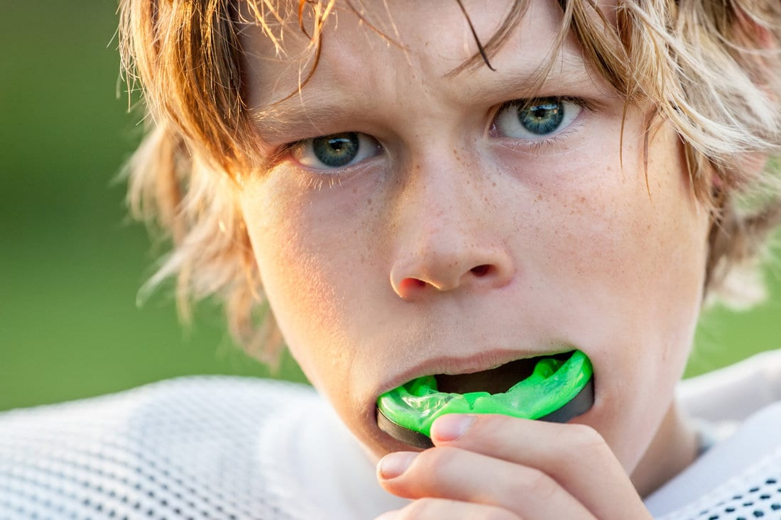 Sports And Braces: How To Protect Yourself