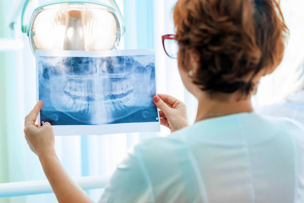 dentist looking at oral x-ray