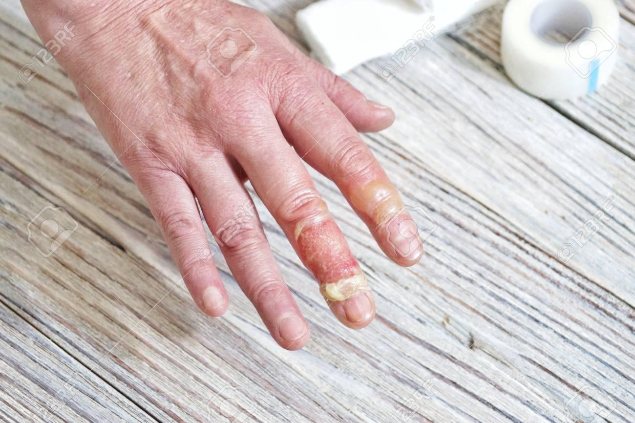 Woman puts scalded hand into cold water, burns of skin, injuries with boiling water, home accident, careless behavior with boiling water, steam, scalds on a skin, injured hand