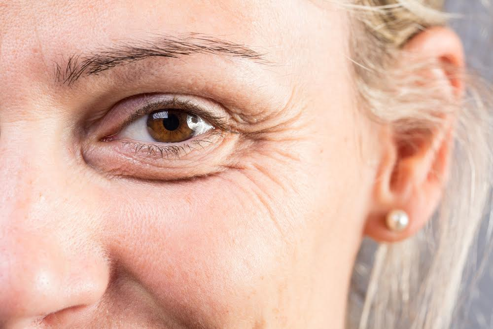 a closeup of a woman with wrinkles