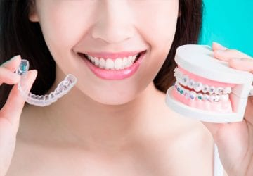 woman showing off different types of braces