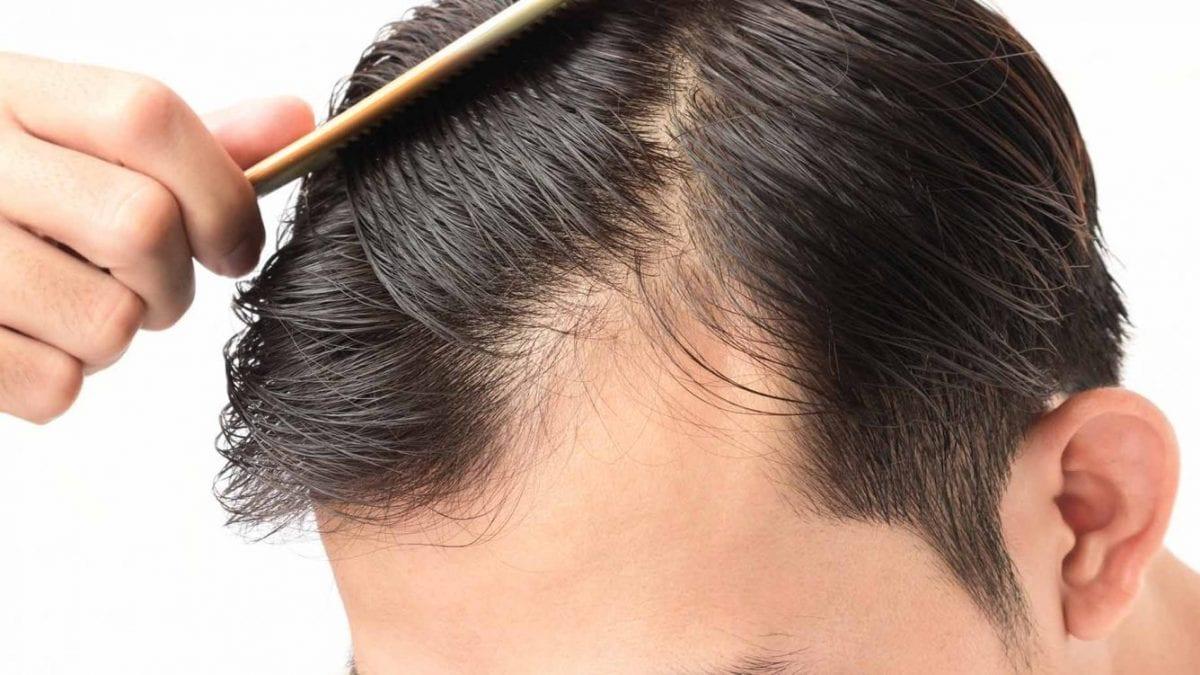 man coming his balding head