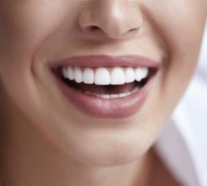 woman smiling with dental veneers