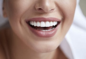 woman smiling with dental veneers