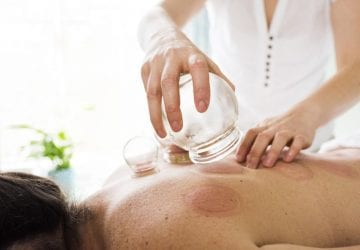 person having cupping therapy
