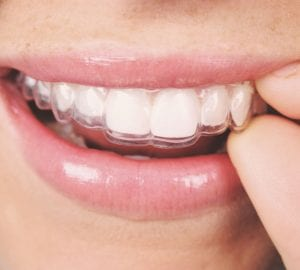 teeth aligner