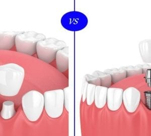 dental implants vs crown