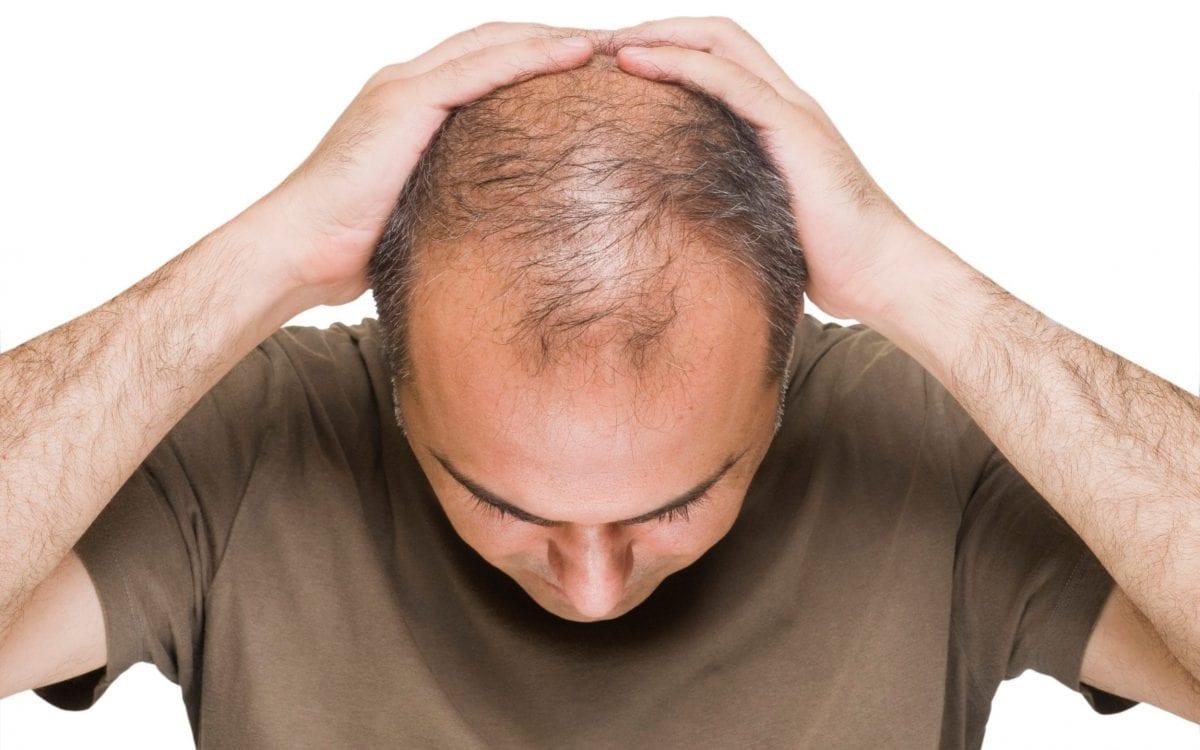 a balding man showing his head