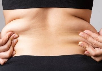 excess skin after weight loss