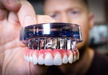 a dentist holding dental implants
