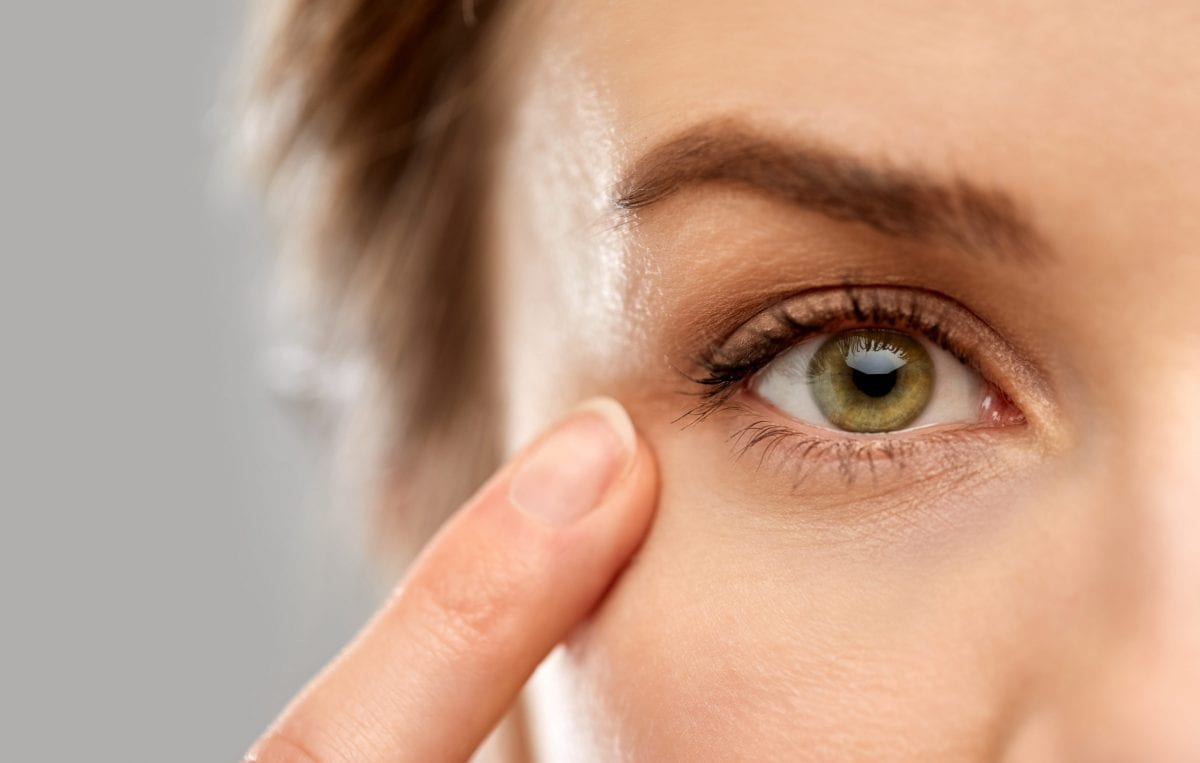 A woman with drooping eyelids