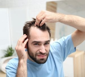 a man checking his hair loss