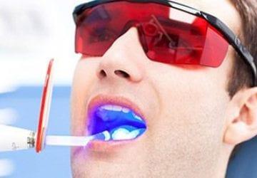 a man getting teeth whitening