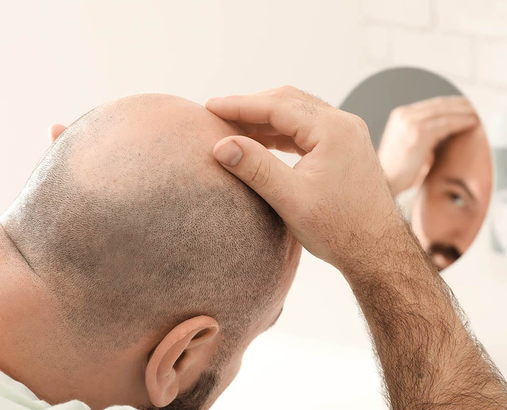 Man with hair loss problem looking in mirror