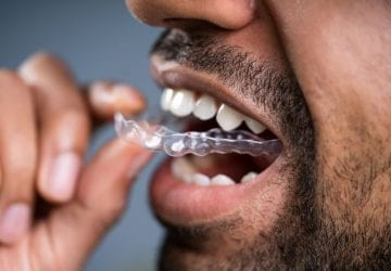 a man placing a retainer
